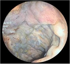 Colonoscopy study showing the multiple tortuous and dilated vessels, with the characteristic coloring, in the rectum.
