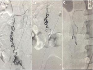 a) Angiography of the abdominal aorta, showing the emergence of the aberrant vessel in a caudal direction and at the level of the rectum, the main vascular tract at which the multiple tortuous branches that make up the hemangioma are seen. b) Polyvinyl alcohol microparticle administration. c) Complete embolization with placement of the coil.