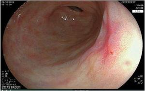 The same lesion seen through LCI (Linked Color Imaging, Fujifilm Co., Japan) virtual chromoendoscopy.
