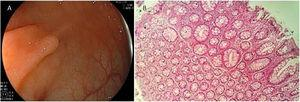 A) Endoscopic appearance of a hyperplastic polyp. It is characterized by a flat or slightly elevated lesion that is transparent or pale. B) Histologic appearance of hyperplastic polyp, showing elongated crypts, a higher number of cells than in normal mucosa, conserved structure and maturation, a normal number of goblet and absorptive cells, with regular nucleus and basal distribution. A chronic inflammatory type of lymphocytic predominance can be seen in the lamina propria.