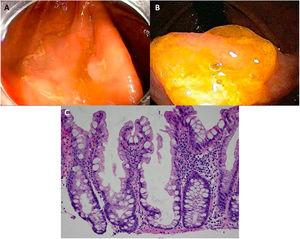 """Sessile serrated adenoma/polyp. A) A mostly flat sessile serrated polyp in the right colon. Note the color similar to that of the adjacent normal colon, the paucity of blood vessels on the surface of the lesion, and the accumulation of yellow """"debris"""" at the edges. B) A sessile serrated polyp in the right colon. Note the prominent """"yellow mucus cap."""" C) Histologic appearance of a sessile serrated adenoma/polyp. It has distorted crypt architecture, with marked serration at the base of the crypts; basal crypts are dilated. (endoscopic images taken with authorization: Rex D. Serrated Polyps in the Colon. Gastroenterol Hepatol 2014; 10 (10). Histologic image was taken with authorization: Kuo E. Sessile serrated adenoma [accessed July 2, 2020]. Available at: http://www.pathologyoutlines.com/topic/colontumorsessileserrated.html."""