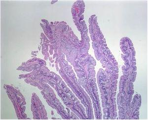 Histologic section of a traditional serrated adenoma, showing a protuberant villiform growth pattern with slit-like serrations. Taken from: Kuo E, Gonzalez R. Traditional serrated adenoma [accessed July 2, 2020]. Available at: http://www.pathologyoutlines.com/topic/colontumortraditionalserratedadenoma.html.