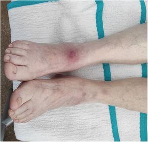 Nonulcerated, erythematous-purplish subcutaneous nodules on the lower limbs.