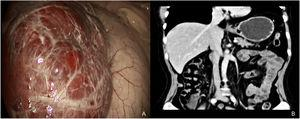 (A) Laparoscopic image of the procedure with a view of the left liver lobe and giant hemangioma. (B) Coronal view of the computed tomography scan, 12 months after the surgical procedure, showing the absence of lateral segments II and III, from the falciform ligament.