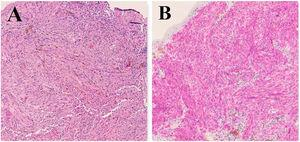 Histology. (A) Diffuse infiltration of the lamina propria by a neoplasm composed of bundles of spindle cells, with atypical nuclei and melanotic pigment (hematoxylin-eosin ×100). (B) Immunohistochemical staining for HMB45 with AEC that shows cytoplasmic positivity in the neoplastic cells (×100).