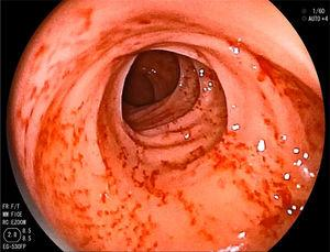 Patchy erosions with marked friability of the colonic mucosa.