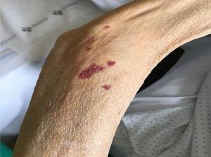 Ecchymosis and capillary fragility in the upper limbs.