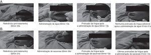 Expressões faciais de recém‐nascidos em reação a soluções neutra (água, A) e de sacarose (B). A, expressão facial característica de recém‐nascidos em reação à solução neutra (água). B, expressão facial característica de recém‐nascidos em reação à solução de sacarose, exibe protrusões de língua (reação hedônica quando feita em série rítmica). Antes da administração de ambas as soluções (água e sacarose), nenhum recém‐nascido apresentou reações faciais hedônicas espontâneas. Ambas as soluções induziram expressões de reação hedônica, porém a solução de sacarose evocou frequências maiores de expressões de reação hedônica em relação à solução neutra. As fotos representam a referência (pré‐tratamento) dos recém‐nascidos, o período durante a administração das soluções e a primeira (se houver) e última protrusão após a administração das soluções (em minutos e segundos).