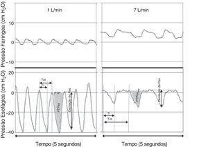 Registros simultâneos das pressões faríngea (em cima) e esofágica (embaixo) de bebês que recebem 1 L/min (esquerda) e 7 L/min (direita) por meio de cânula nasal. Embora ocorra um aumento considerável na pressão faríngea durante condições de fluxo mais alto, praticamente nenhum aumento é observado na pressão expiratória final medida em nível torácico. A aplicação de um fluxo de 7 L/min reduziu de forma significativa as oscilações da pressão intratorácica por meio da atenuação da pressão inspiratória negativa. Adaptado de Milési et al.15