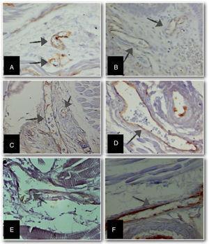 Micrografias de fragmentos de línguas de natimortos examinadas com microscópio óptico que mostram o aumento em vasos sanguíneos imunomarcados com o anti‐CD31 (setas) (lentes objetivas de 100x – ampliação final de 3250x) em diferentes idades gestacionais (IG). A) IG: 23 semanas&#59; B) IG: 28 semanas&#59; C) IG: 34 semanas&#59; D) IG: 37 semanas&#59; E) IG: 39 semanas e F) IG: 40 semanas.