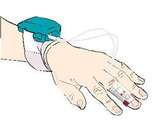 Finger blood pressure measurement using a non-invasive digital monitor.