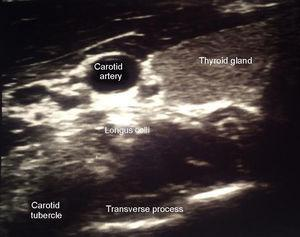 Is the ultrasound image where the carotid artery is observed at a higher level, this medial thyroid; below the carotid artery are the long Colli muscle and the lower part the transverse process of C6 which is recognized by its former tuber identified.