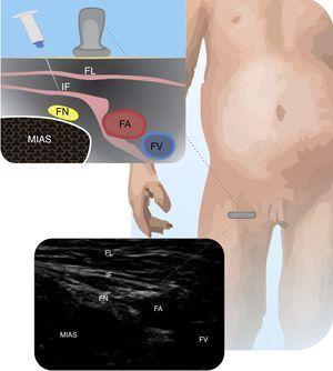 Femoral nerve. Depicts the femoral nerve (FN) relative to the femoral artery (FA) and the femoral vein (FV); fascia lata (FL); iliac fascia (IF); iliopsoas muscle (MIAS).
