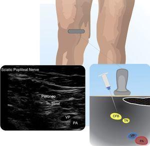 Sciatic popliteal nerve (SPN). Depicts the SPN at the insertion of its two components: tibial nerve (TN) and common fibular nerve (CFB). popliteal artery (PA).