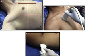 (a) Ultrasound examination of the lung by regions – International Liaison Committee on Lung Ultrasound (ILC-LUS) for the International Consensus Conference on Lung Ultrasound.17 (b, c) The transducer should be perpendicular to the ribs as illustrated. The projection obtained in b is usually recommended for the evaluation of pleural movement and c is ideal to identify the presence of pleural fluid.