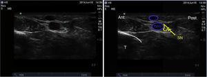 Ultrasound imaging of the saphenous nerve. SN: saphenous nerve; GSV: greater saphenous vein; T: tibia.
