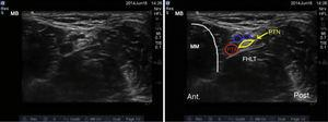 Ultrasound imaging of the tibial nerve. PTN: posterior tibial nerve; PTA: posterior tibial artery; MM: medial malleolus; FHLT: flexor hallucis longus tendon.