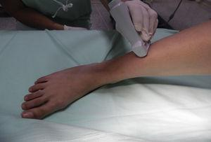 Patient and transducer positioning for superficial peroneal nerve block.