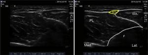 Ultrasound imaging of the superficial peroneal nerve. SPN: superficial peroneal nerve; EDL: extensor digitorum longus; PL: peroneus longus; F: fibula.
