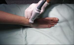 Patient and transducer positioning for deep peroneal nerve block.