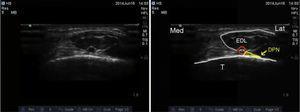 Ultrasound imaging of the deep peroneal nerve. DPN: deep peroneal nerve; ATA: anterior tibial artery; EDL: extensor digitorum longus; T: tibia.
