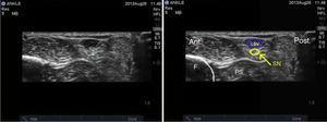 Ultrasound imaging of the sural nerve. SN: sural nerve; LSV: lesser saphenous vein; F: fibula; PS: peroneal sheath.