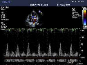 Preoperative echo showing E-wave/A-wave ratio of 8cm/s.