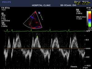 Transthoracic echo 2 months after surgery. E-wave/A-wave ration of 1.4cm/s.