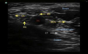 Ultrasound image of the brachial plexus at the axillary level. UN=ulnar nerve, RN=radial nerve, MN=median nerve, MCN=musculocutaneous nerve, AA=axillary artery, CT=conjoined tendon.