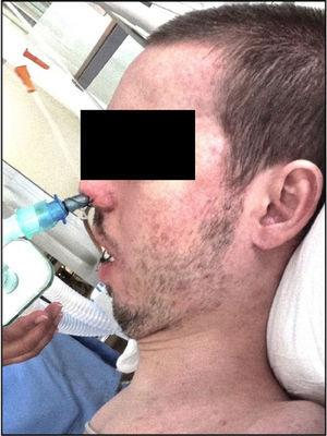 Patient with nasotracheal intubation. Source: Authors.