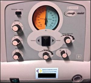 Insufflation–exsufflation device. Source: Authors.