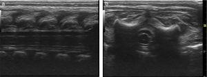 (a and b) Epidural space in a neonate with US-guided spreading of local anesthesia at the thoracic level. (a) Sagittal section. (b) Coronal section. High frequency transducer. Case no. 1.