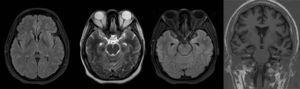 Brain MRI. Improved limbic enhancement.