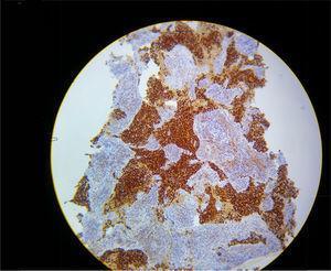 Histology of thymic carcinoma under cytokeratin staining. Source: authors.