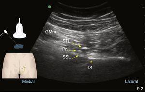 Gluteal ultrasound during pudendal nerve (Pn) recognition. The nerve is deep to the gluteus maximus muscle (GMm), the sacrotuberous ligament (STL), and superficial to the sacrospinous ligament (SSL). The ischial spine (IS) is found lateral to those structures.