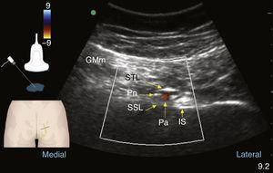 Colour Doppler ultrasound at the gluteal level: pudendal nerve (Pn), gluteus maximus muscle (GMm), deep to the sacrotuberous ligament (STL) and superficial to the sacrospinous ligament (SSL); the internal pudendal artery (Pa) and the ischial spine are found lateral to these structures.