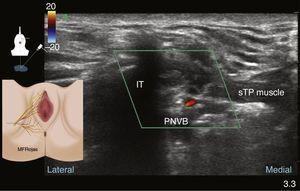 Perineal ultrasound in colour Doppler mode showing the ischial tuberosity (IT), superficial transverse perineal muscle (sTP) and the pudendal neurovascular bundle (PNBV).