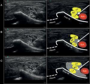 Ultrasound image captured during the administration of the supraclavicular block using a medial approach on the anatomic specimen. (A) Position of the needle at the injection site. (B) Ultrasound image during the 10ml injection. (C) Ultrasound image after completing the 20ml injection. ScA, subclavian artery; UT, upper trunk; MT, middle trunk; LT, lower trunk. The arrow points toward the position of the neurostimulation needle. The gray shade shows the distribution of the volume injected at the injection site evaluated with ultrasound.