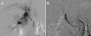 Bronchial arteriography. Hypertrophy of bronchial arteries (right intercostobronchial trunk and right branch of the bronchial trunk) (A). Uneventful embolization of these branches (B).
