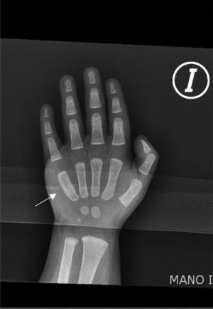 Left hand radiograph: periostic reaction in the fifth metacarpal bone.
