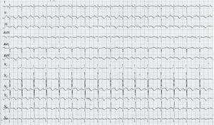 ECG: QTc interval 500ms, negative T waves in leads II, III, aVF, V4, V5 and V6.