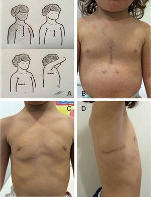 (A) Illustration of various incisions. (B) Lower mini-sternotomy approach. (C) Submammary approach. (D) Axillary approach.