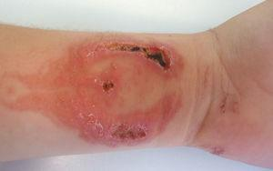 Allergic contact dermatitis due to PPD with necrotic lesions from a phoenix tattoo with black henna adulterated with PPD. The lesions will result in permanent scarring.