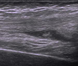 Ultrasound of the right knee, showing a hypoechoic effusion with internal echoes in the right suprapatellar bursa as well as moderate synovial thickening.