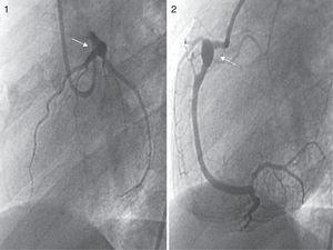 Coronary angiograms. Sixty degree left anterior oblique (LAO) view of the left coronary arterial tree (image 1), revealing a giant aneurysm in the distal left main trunk and the ostial RCA. Sixty degree LAO view of the RCA (image 2) showing a giant aneurysm in the proximal segment.