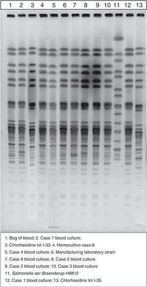 Pulsed-field gel electrophoresis patterns of the strains involved in the outbreak.