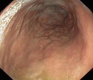 Upper gastrointestinal endoscopy.