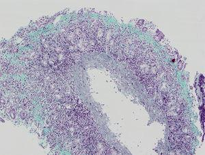 Gastric biopsy.