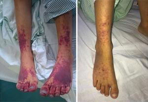 (a) Purpuric lesions in distal region of lower extremities following diagnosis of haemophagocytic syndrome&#59; (b) change in purpuric lesions after treatment of intravenous methylprednisolone and nitroglycerine patches.
