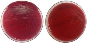 Picture of Actinotignum schaalii colonies in culture media. Growth in blood agar after 48h of culture under anaerobic conditions (left) and aerobic conditions (right).